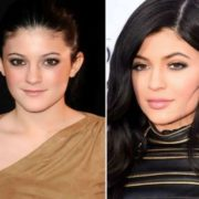 Kylie before and after plastic surgery