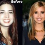 Ivanka before and after plastic surgery