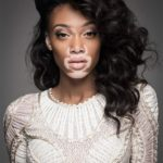 Winnie Harlow – very unusual model