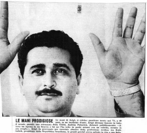 Jose Pedro de Freitas is a well-known parasurgeon of the 20th century